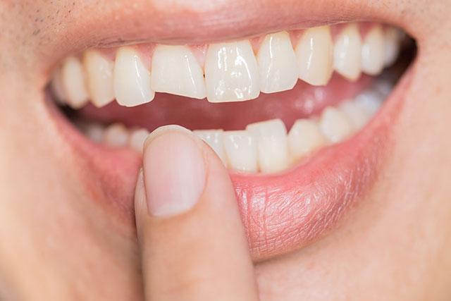https://hampsteaddentalpractice.com.au/wp-content/uploads/2021/03/Fractured-tooth1.jpg