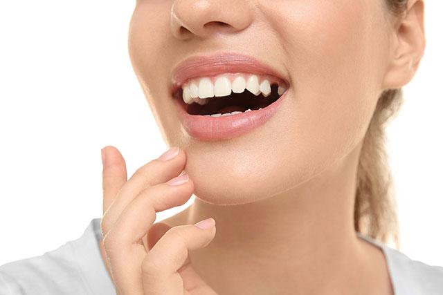 https://hampsteaddentalpractice.com.au/wp-content/uploads/2021/03/Missing-tooth1.jpg