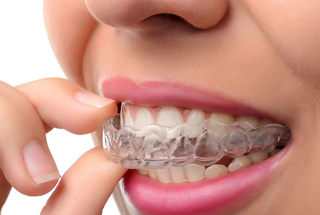 https://hampsteaddentalpractice.com.au/wp-content/uploads/2021/03/Mouthguards-night-guards1.jpg