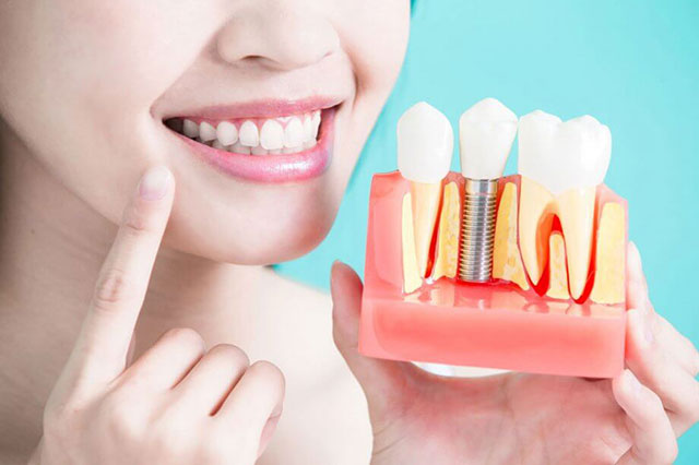 https://hampsteaddentalpractice.com.au/wp-content/uploads/2021/03/dentalimplants-1.jpg